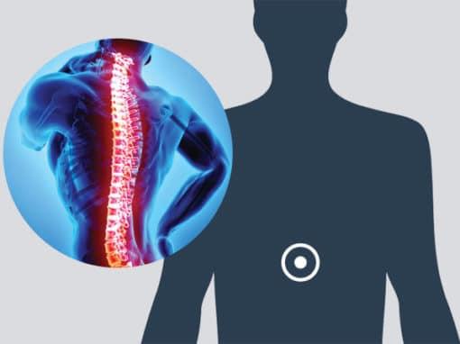 Spine – Neck & Back