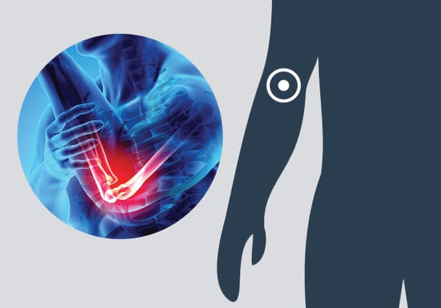 Graphic of an elbow
